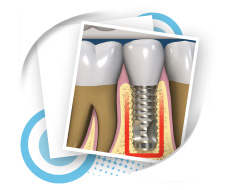 Thailand Dental Implant